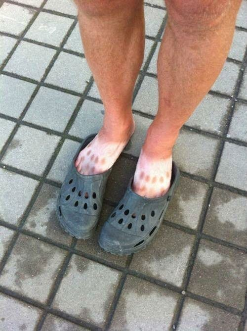 Who should stay away from the beach? Guys (and girls) with Crocs
